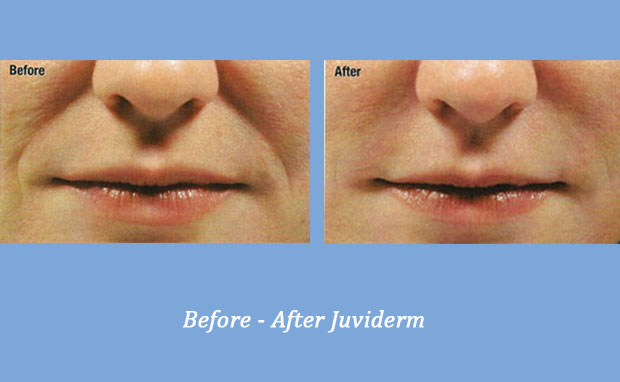 Juviderm before and after photos showing nasolabial folds 1 | Cumming, GA