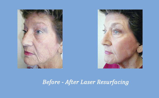 before and after photos of laser resurfacing 3 | Dr. Alexander Gross