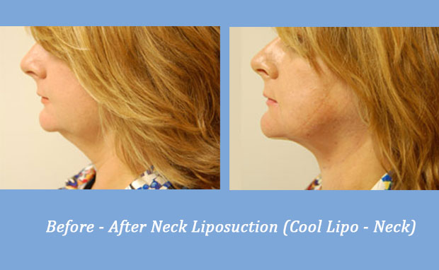 before and after photos showing neck liposuction | Alpharetta, GA