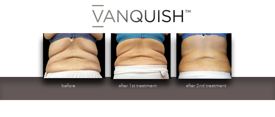 Before and after photo of Vanquish
