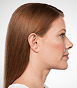 KYBELLA for eliminating double chin | After Photo