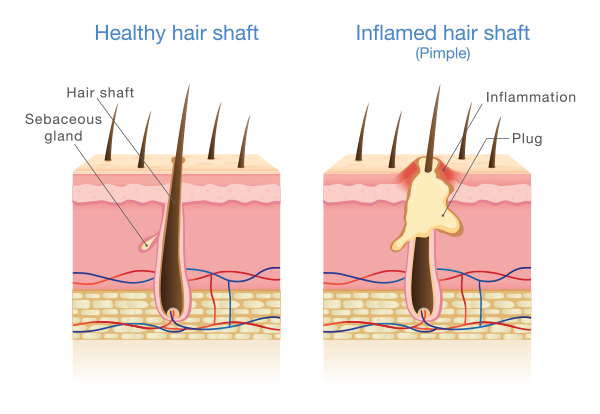 folliculitis | medical illustration showing inflamed hair shaft