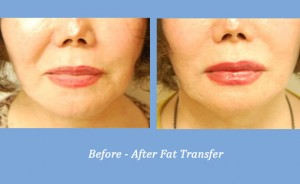 Fat Transfer | Alpharetta, GA | Dr. Alexander Gross