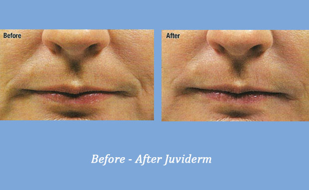 before and after photos showing Juviderm used on nasolabial folds 2 | Cumming, GA