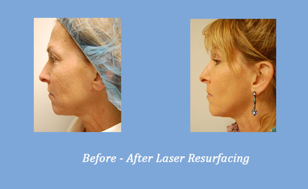before and after photos of laser resurfacing 1 | GA Dermatology Center