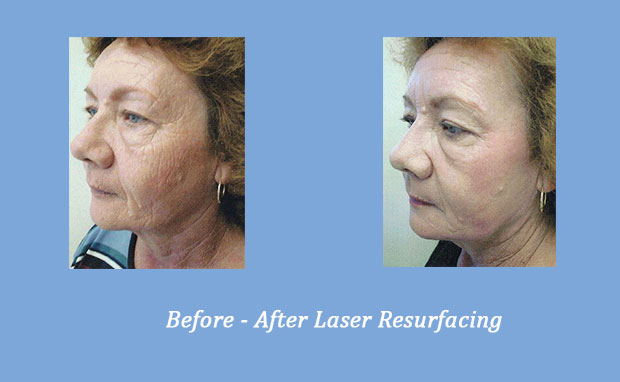 before and after photos of laser resurfacing 2 | Cumming, GA