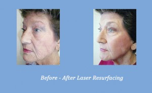 Georgia Dermatology Center Offers Profractional Laser Treatment to Improve your Appearance - You Can Look Up To 10 Years Younger