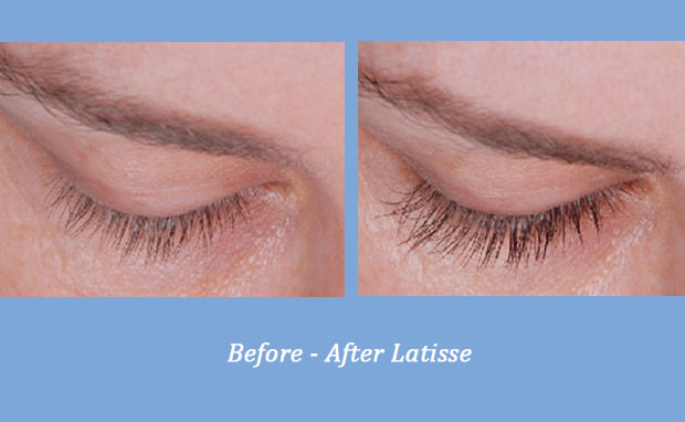 before and after photos showing Latisse Eye Lash Enhancer 1 | Dr. Gross