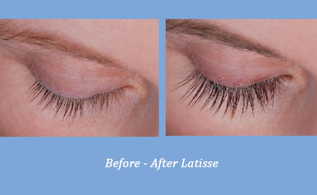 before and after photos showing the results of Latisse Eye Lash Enhancer 2 | Cumming, GA
