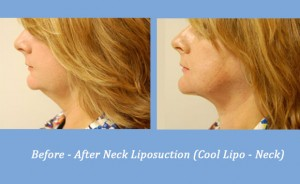 Cool Lipo Liposuction on the Neck | Georgia Dermatology Center