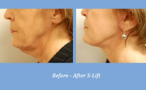 S-Lift | Dr. Gross | Georgia Dermatology Center