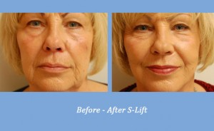 Before and After S-Lift