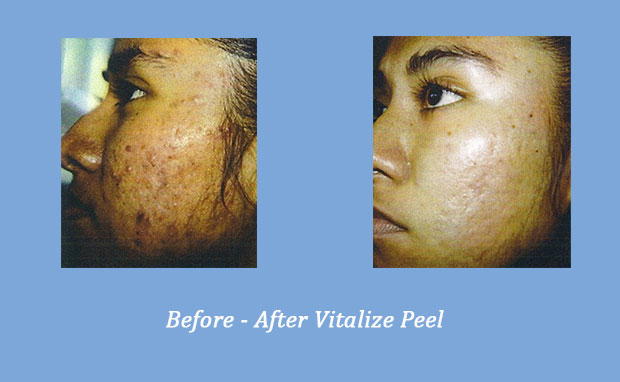 Before and After photos of the results of Vitalize Peel