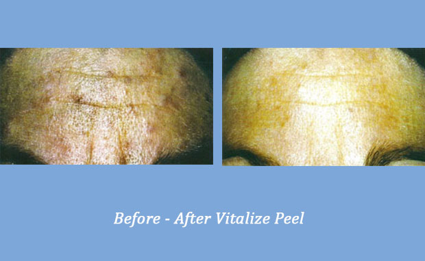 Before and After photos showing Vitalize Peel | Georgia Dermatology Center