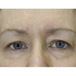 photo showing a set of eyes after Exilis treatment   Dr. Gross
